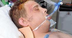 David Baker in coma