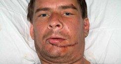Ian Matthews injury